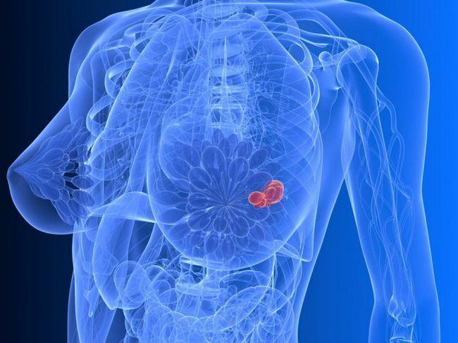 Фото - Фактори ризику розвитку раку грудей
