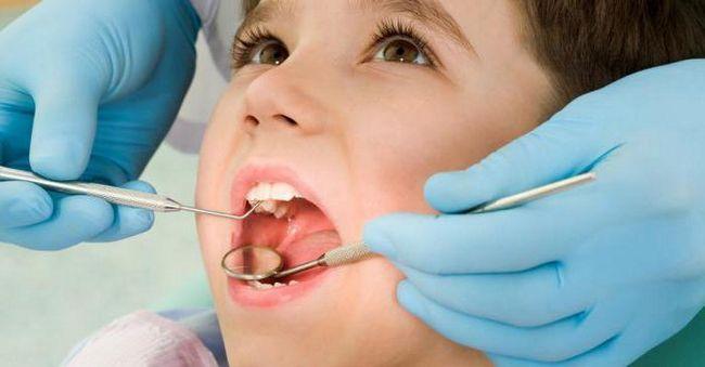 як зміцнити емаль зубів в домашніх умовах